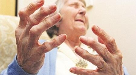 Biểu hiện của bệnh viêm đa khớp dạng thấp thường bị đau nặng ở các khớp nhỏ như khớp bàn tay, khớp ngón tay, khớp bàn chân, ngón chân