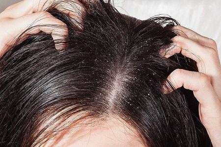 bệnh vẩy nến thường gặp hiện nay có biểu hiện là vùng da bị tổn thương xuất hiện các lớp da trắng mốc chai sạm, phân thành nhiều mảng và ửng đỏ.