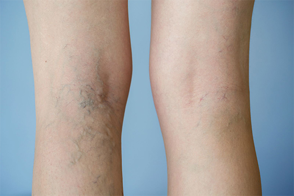 Giãn tĩnh mạch chân gây nên những cơn đau nhức dai dẳng