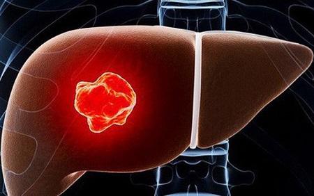 Ung thư gan là căn bệnh rất nguy hiểm đến tính mạng của con người